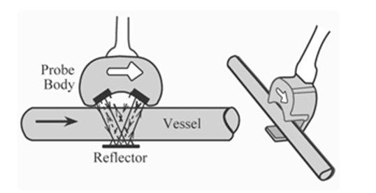 figure 5 ultrasonic-flow-meter-construction